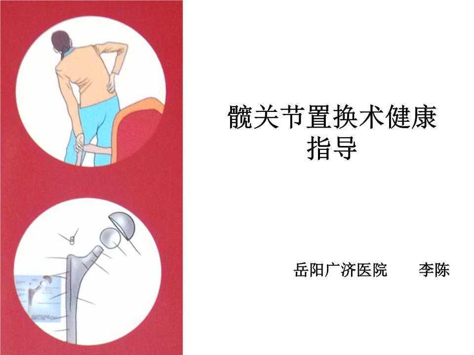 髋关节置换术健康指导.ppt